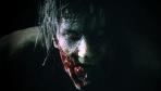 Resident Evil 2 Remake - News